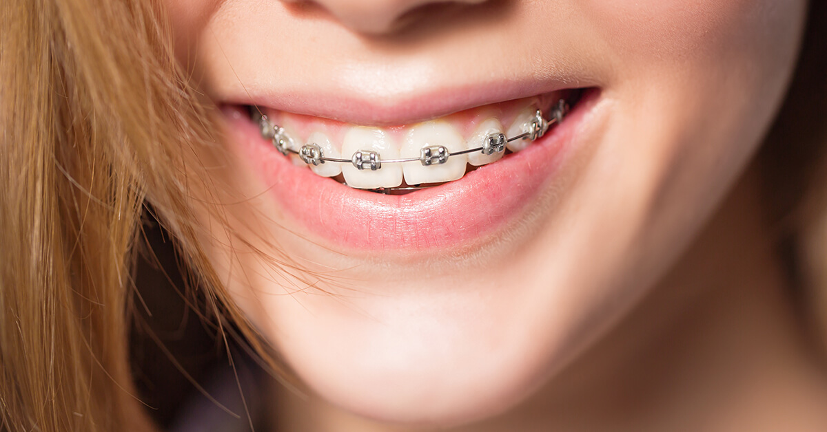 Dentist Explains the Benefits and Cost of Six-month Smiles in Burlington ON Area