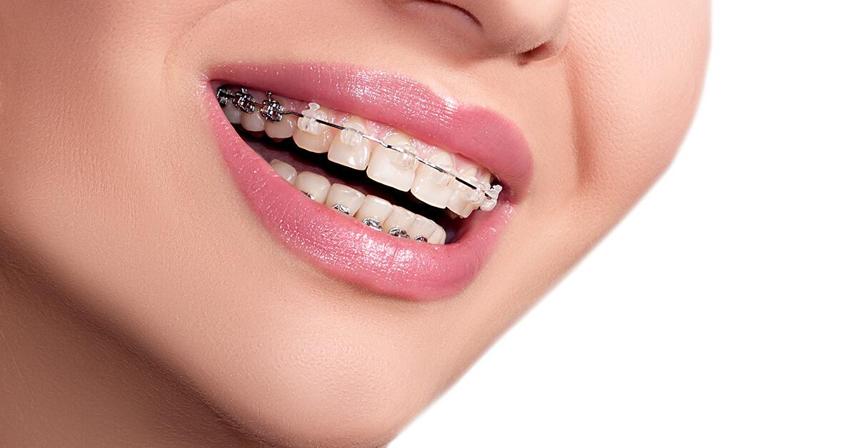 Clear Teeth Straightening in Burlington, ON Area